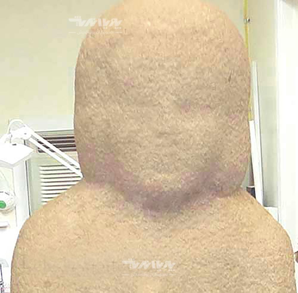 14 - بازسازی مجسمه سنگی
